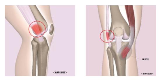 ランナー膝の症状