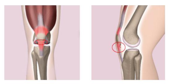 ジャンパー膝の症状
